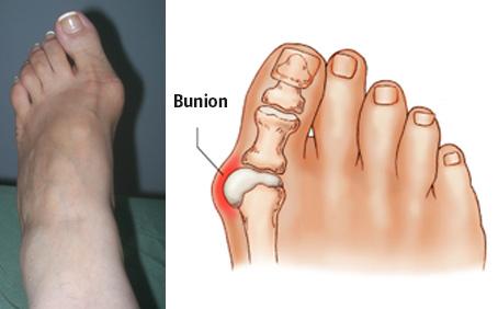 bunion_pain_1