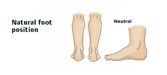 Shoe-Insole—natural-position