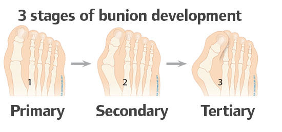 3 stages of Bunion development on the foot
