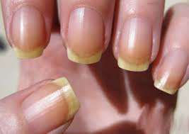 Nails with yellow discolouration