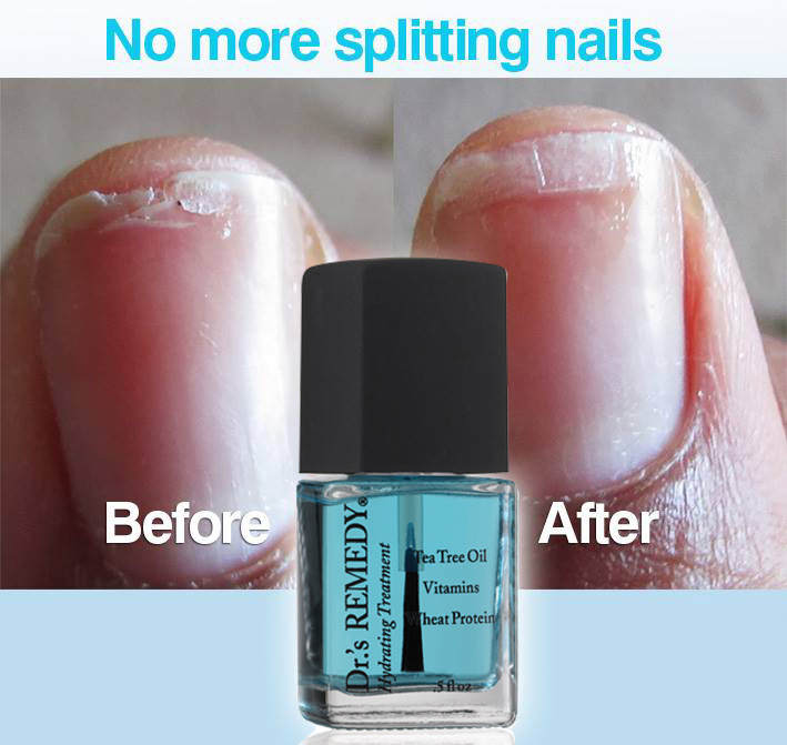 splitting-nails