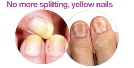 bad-nails