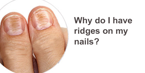 Ridges on my nails