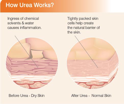 How Urea Works