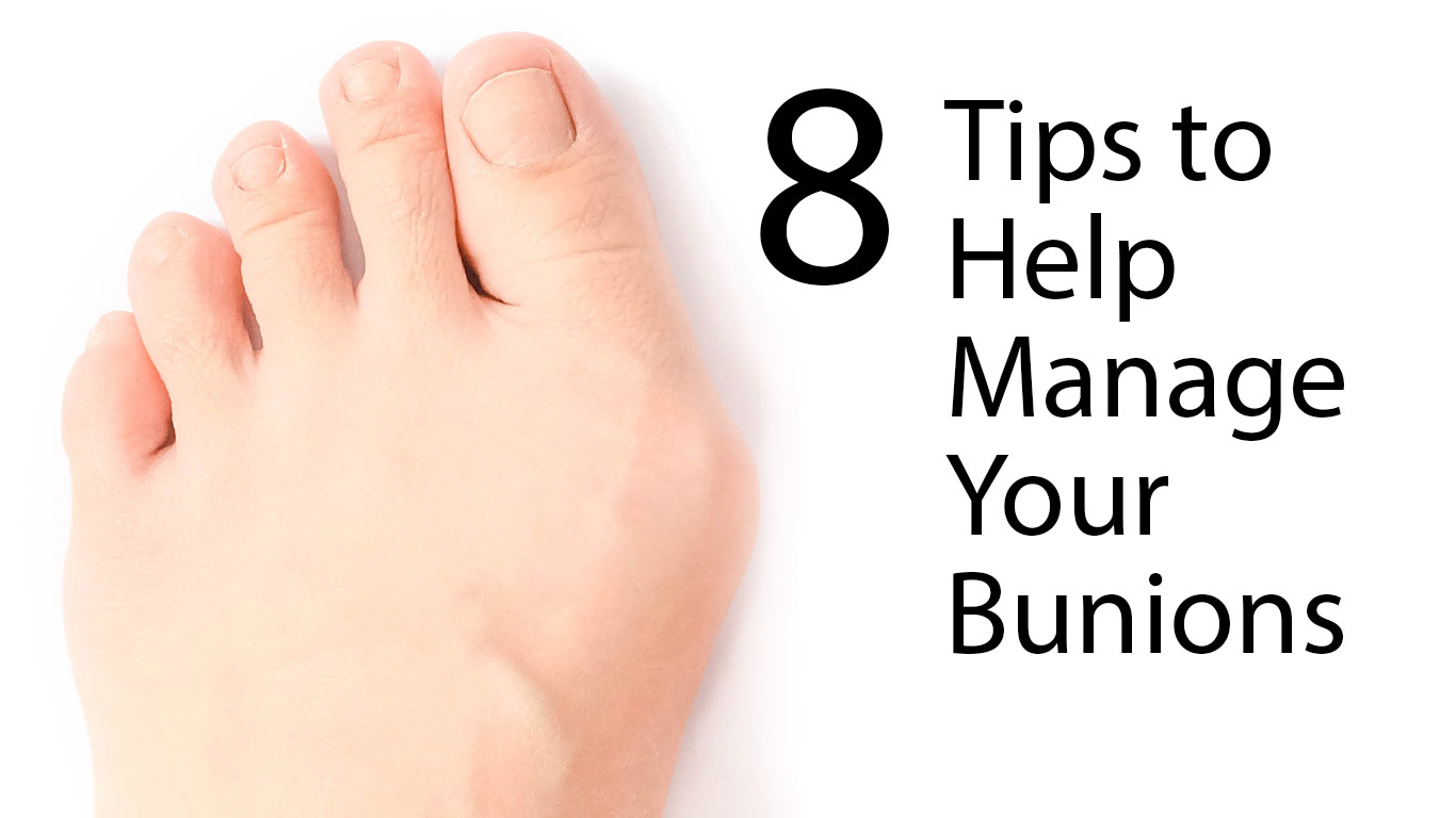 manage-bunions