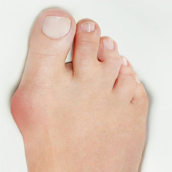 stage-two-bunion