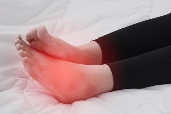 swelling-in-feet