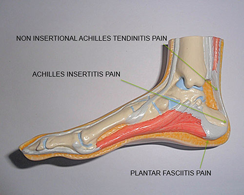 Plantar Fasciitis and Heel Pain