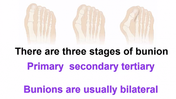 Bunion stages of deformity