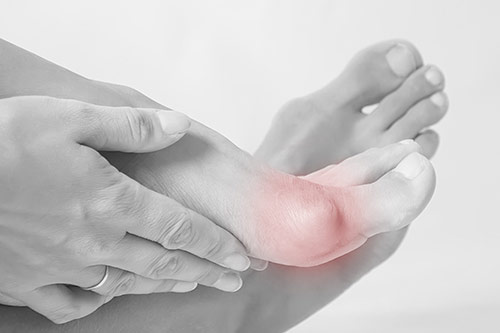 Bunion foot pain