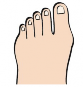 Primary stage of bunion development