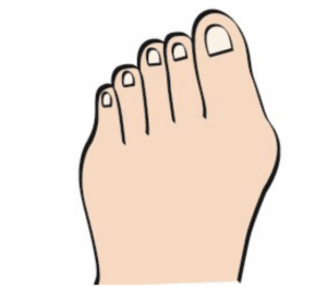 Secondary stage of bunion development