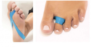 Taping Loop for Bunion and hammer toes